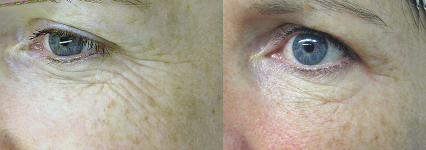 Before & after 3 INTRAcel Light for the eyes