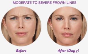 before & after image of anti-wrinkle treatment