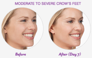before & after image after crow's feet treatment