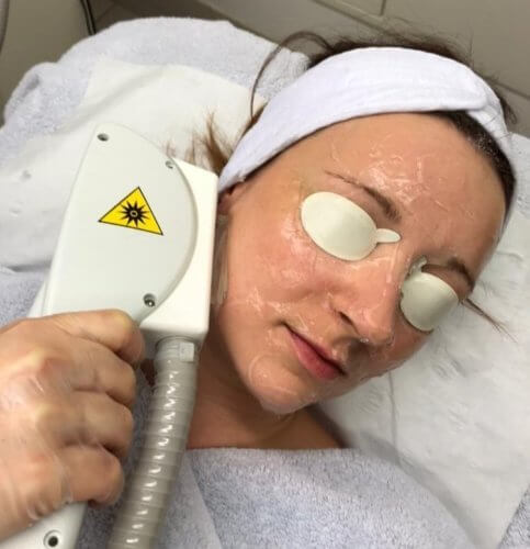 lady having IPL on her face with the eyes covered for protection
