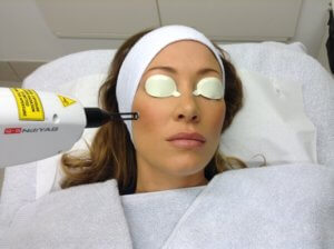 Hollywood Facial