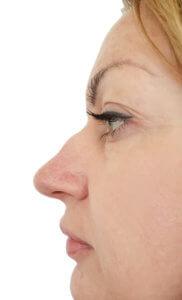 Nose Bump