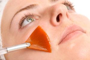 Problem Skin Peel