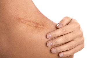 Body Scarring Treatment