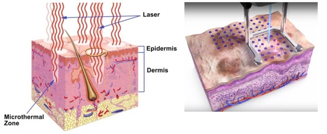 laser beam causing controlled trauma to the surface of the skin