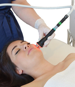 Radiofrequency Facial
