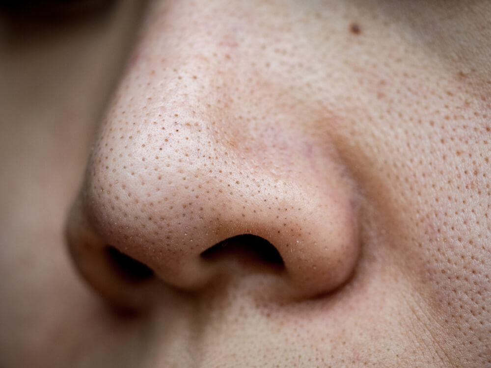Pores (Open or Enlarged)