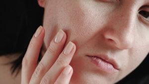 Dull or Dry Skin