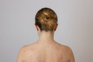 Body Acne Scar Removal