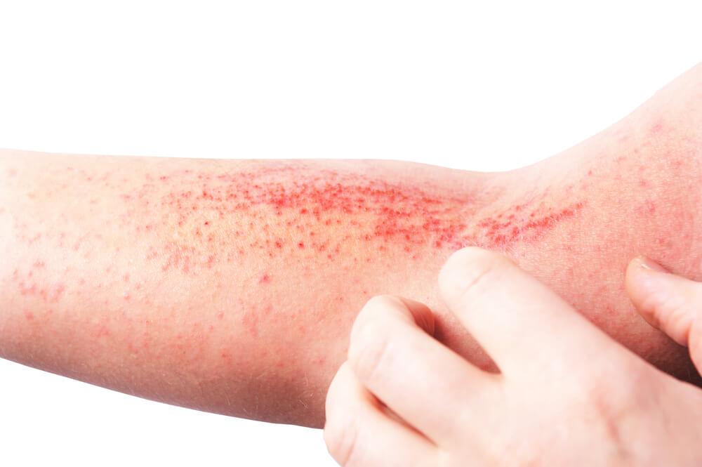Eczema/Psoriasis