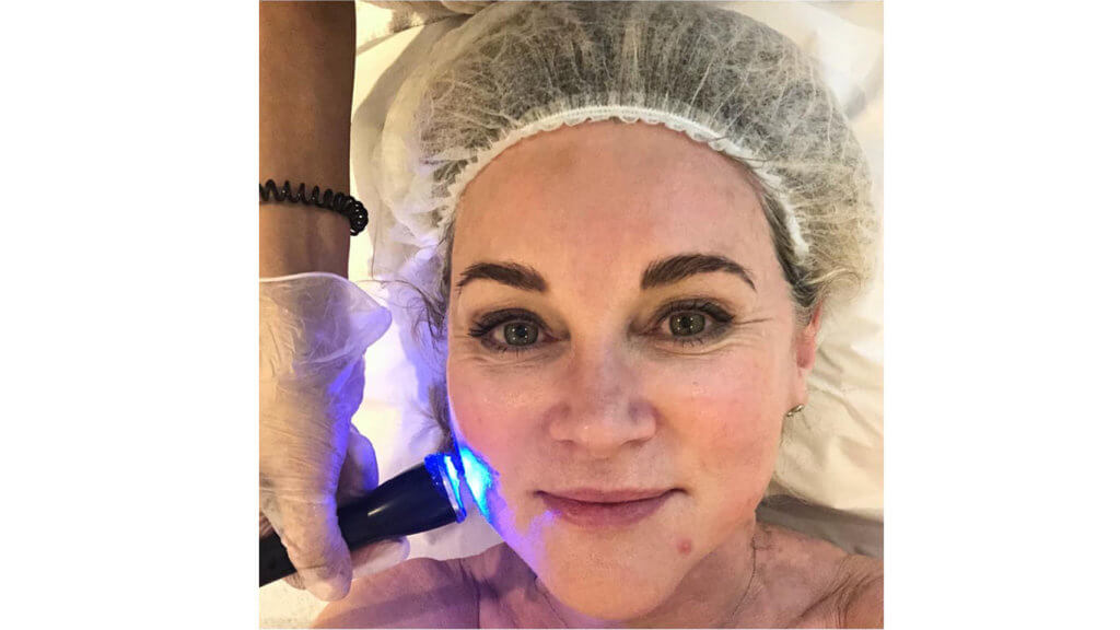 Anthea Turner's Skincare Secrets