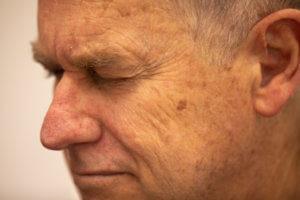 Men's Pigmentation Removal