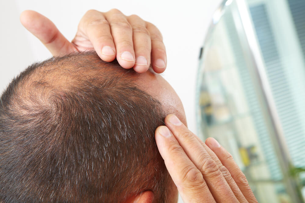 Men's Hair Loss Treatment