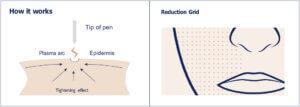 graphic of plasma pen device