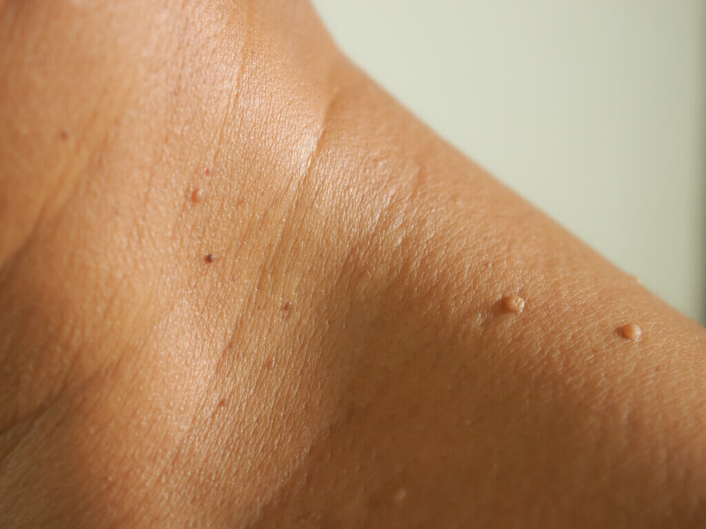 What Are Skin Tags & How To Get Rid Of Them?